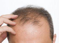 Cilët jan shkaktarë të Humbjes së flokëve (Alopesia)?