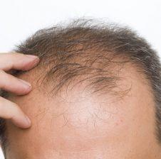 Ilaç për ndërprerjen e rënies së flokëve  (me kokërr të zezë)
