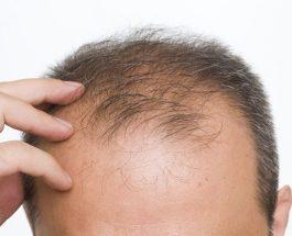 A është e lejuar mbjellja e flokëve? (pyetje/pergjigje)