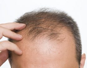 Probleme me rënien e flokëve? Shtoni 3 përbërës në shampon tuaj