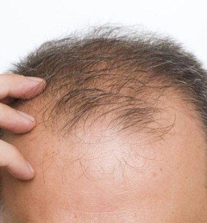Trajtime natyrale që duhet të provosh për mos rënien e flokëve