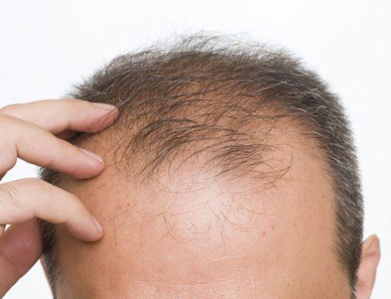 Me rukje kundër rënies së flokëve