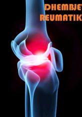 Si të trajtojmë reumën,dhembjet reumatike