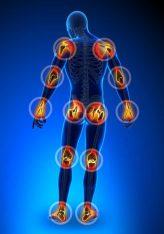 Reumatizmi