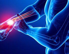 Reumatizma – Mënyrat për të Zbutur Dhimbjet