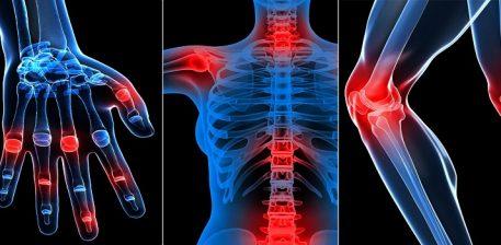 Recetë natyrale për shërimin e reumatizmës