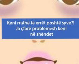 Rrathët e errëta poshtë syve nuk tregojnë vetëm lodhje, ato mund të jenë një shenjë paralajmëruese e këtyre problemeve serioze shëndetësore!