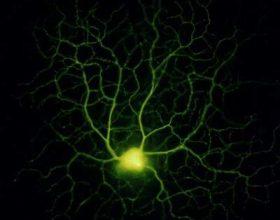 Faktet shkencore : Qeliza ,truri ,trupi i njeriut dhe Kurani Famelarte