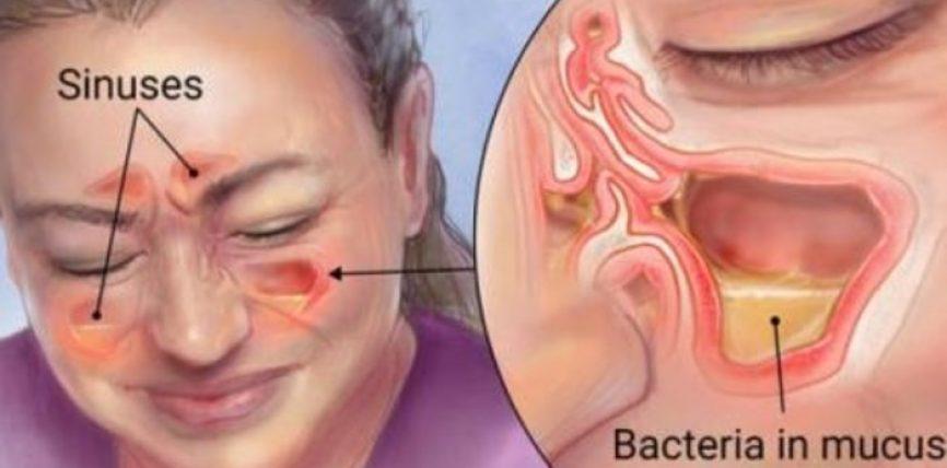 Shëroni infeksionet e sinusëve në kushte shtëpie