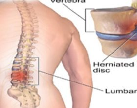 Sekreti për lehtësimin e dhimbjes të shpinës është në këmbët tuaja! Bëni këto 5 ushtrime për vetëm 15 minuta