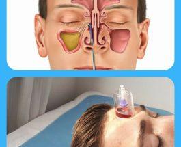 Trajtimi i sinozitit me terapin e kupave apo Hixhamen, një menyrë e lehtë për ta lehtësuar apo menjanuar në tërësi!