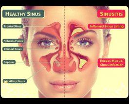 Trajtimi i sinuseve