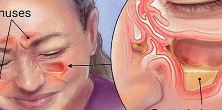 Vrisni infeksionet e sinusit në 20 sekonda me këtë metodë të thjeshtë dhe me përbërës që gjenden në shtëpi