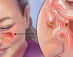Keshilla rreth sinusitit dhe kokedhembjes pasuese…