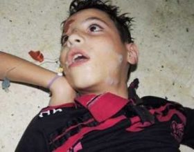 (Video) Siri: Fakte të reja nga masakra me armë kimike
