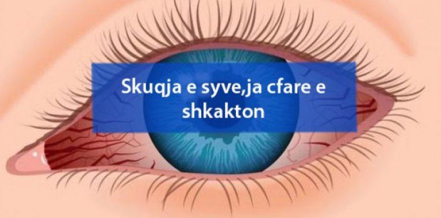 Skuqja e syve,ja cfare e shkakton