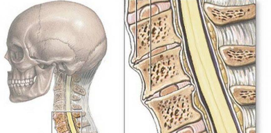 SPONDILIATROZA Si të evitojmë dhimbjet