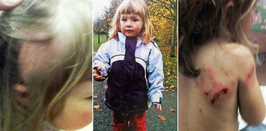 Motrat 3 dhe 5 vjeçare sulmohen nga një qen