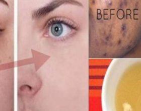 Ilaçi i bërë në kushte shtëpiake që do t'ju ndihmojë të hiqni pikat e zeza dhe tju shkelqej fytyren