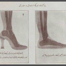 Ecja, problemët me ecjen si dhe këpucet me taka të larta