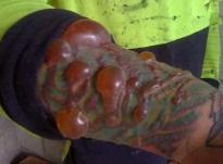Tatuazhi dhe dëmet fizike