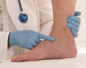 Keni ngushtim të enëve të zemrës, ngushtim të venave të këmbëve, yndyrë në gjak?