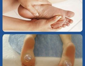 Trajtimi i Djegies së shputave të këmbëve me Terapin e Hixhames!