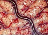 Nje Neurolog Amerikan ka fotografuar trurin e njeriut!!