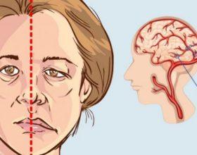 Simptomat e goditjes në tru që nuk duhet t'i injoroni kurrë