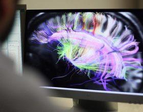 Hulumtim, truri i psikopatëve punon më ndryshe
