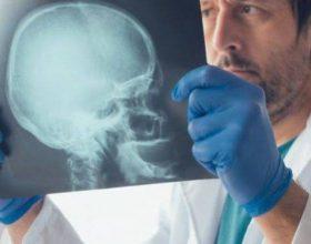 Katër simptomat më të zakonshme të tumorit në tru