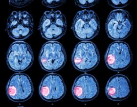 Tumoret e trurit tek fëmijët