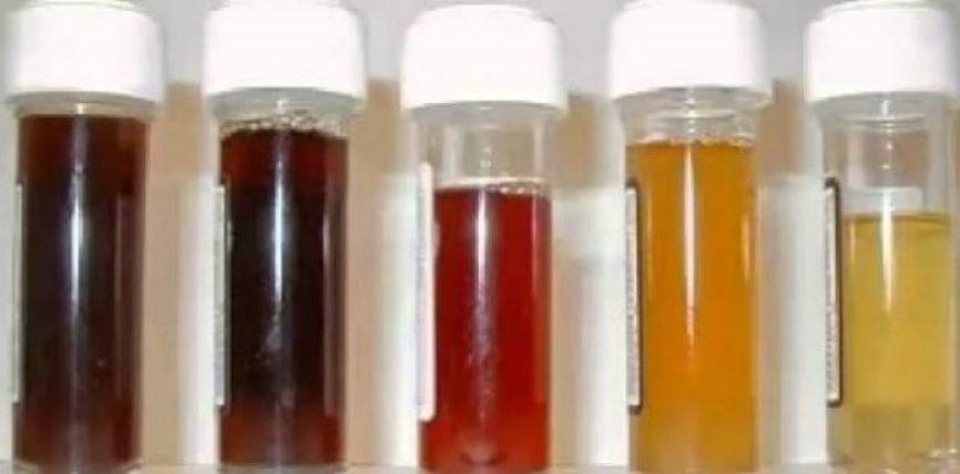 Ngjyra e urinës tuaj mund të sinjalizojë gjëra të shumta për shëndetin tonë!