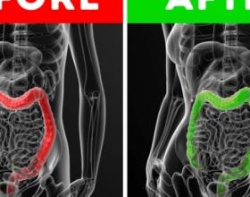 Çfarë i ndodh trupit të njeriut nëse pini vaj ulliri me stomak bosh, do të habiteni me rezultatet