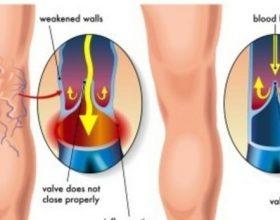 Si të kuroni venat pa operacion?