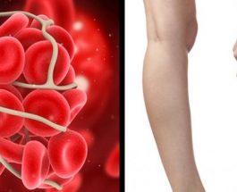 5 simptomat paralajmëruese të mpiksjes së gjakut që nuk duhet të injoroni kurrë, mund t'ju shpëtojnë jetën