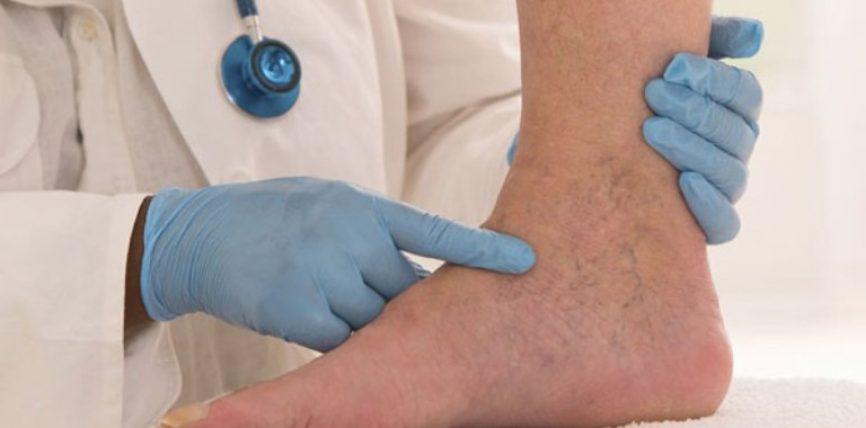Terapi natyrale efikase për hapjen e enëve të gjakut !?