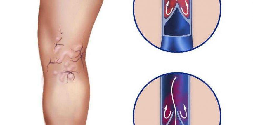 Si ti parandalojmë sëmundjen e zgjerimit të venave