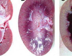 Ky është lëngu detoksifikues që çhelmon veshkat nga toksinat dhe mbetjet e tjera të trupit