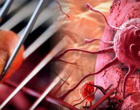Kanceri i vezoreve: Shenjat që tregojnë se vuani nga kjo sëmundje