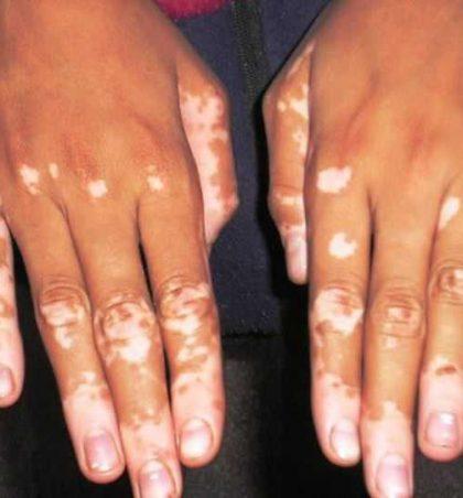 Sëmundja e Vitiligo-os, shkakëtarët, shenjat dhe trajtimi !?
