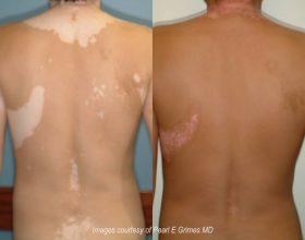 Vitiligo dhe trajtimi