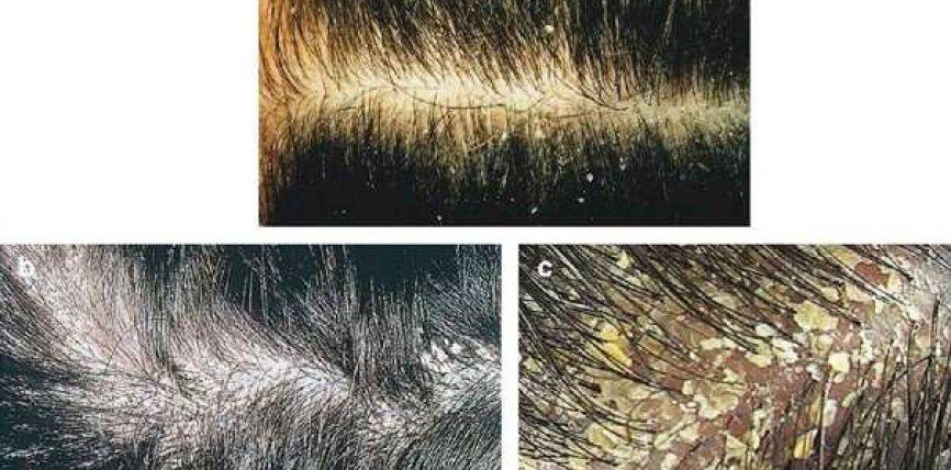 Flokët me zbokth cka të veprojmë?