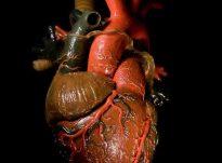 """""""Shkaqet e ngurtësimit të zemrës janë:"""