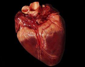 Sulmi i zemrës (infarctus myocardii)