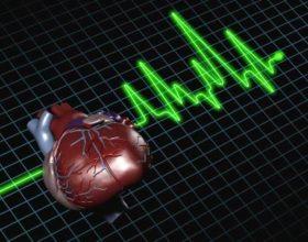 Sëmundjet kardiovaskulare